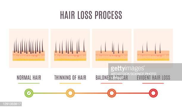 hair loss stages, illustration - dermis stock illustrations