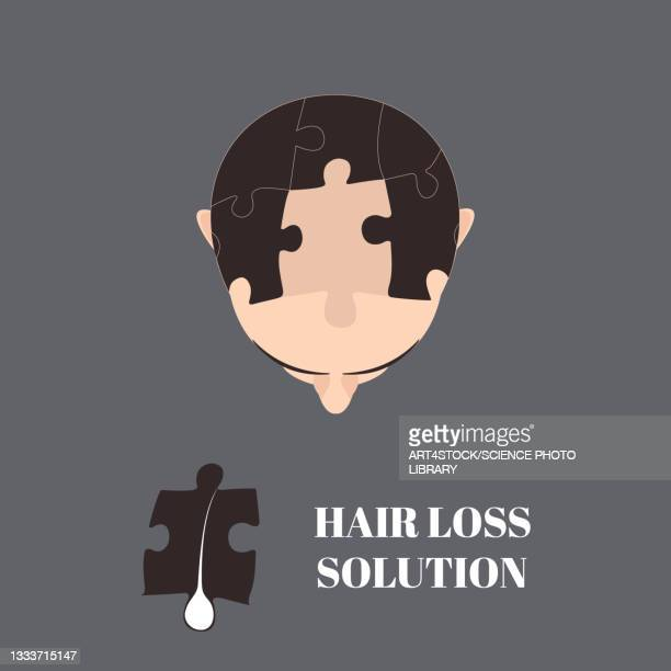 hair loss treatment, conceptual illustration - the ageing process stock illustrations