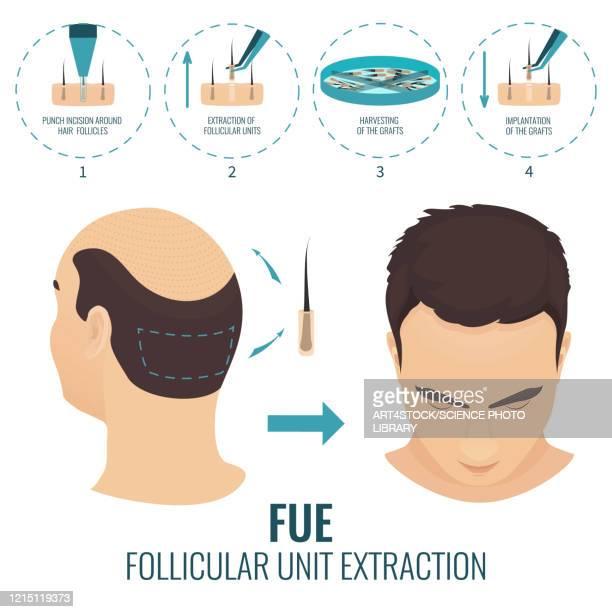 fue hair loss treatment in men, illustration - template stock illustrations