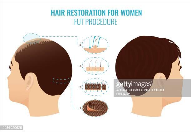 fut hair loss treatment in women, illustration - human scalp stock illustrations