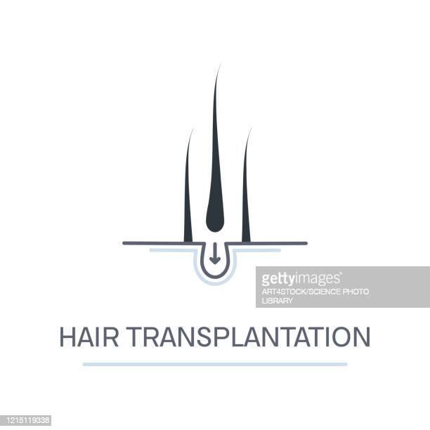 hair transplantation, conceptual illustration - human scalp stock illustrations