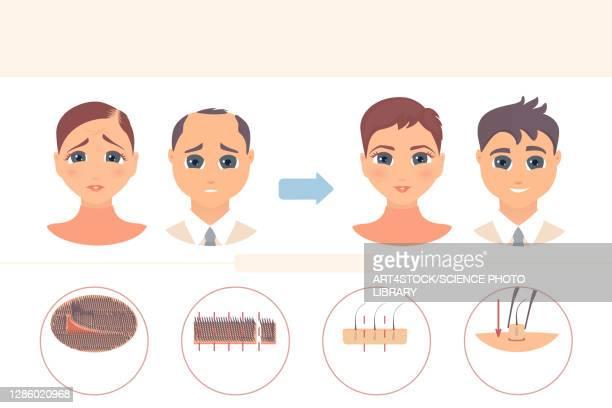 fut hair transplantation, conceptual illustration - human scalp stock illustrations