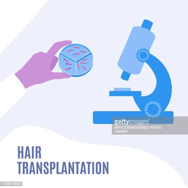hair transplantation, illustration - hair follicle stock illustrations