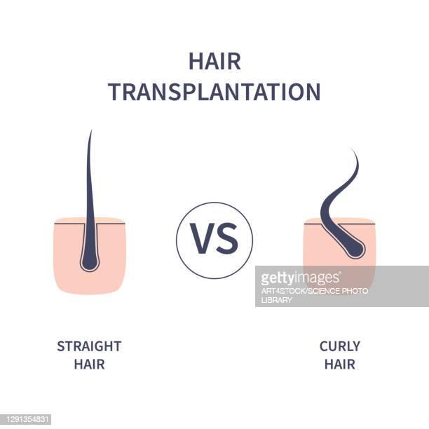 hair transplantation, illustration - skin graft stock illustrations