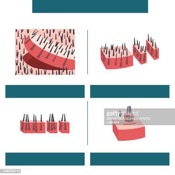 fut hair transplantation, illustration - human scalp stock illustrations
