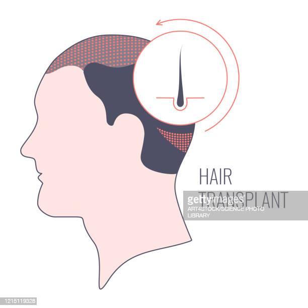hair transplantation in men, conceptual illustration - human scalp stock illustrations