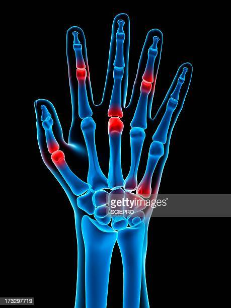 hand joint pain, conceptual artwork - joint body part stock illustrations, clip art, cartoons, & icons
