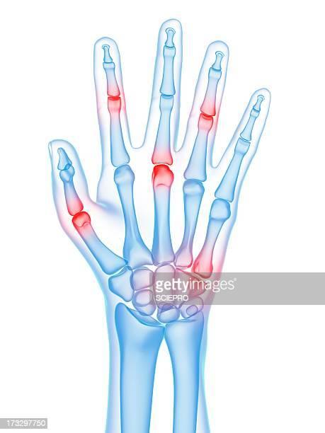 hand joint pain, conceptual artwork - 手首点のイラスト素材/クリップアート素材/マンガ素材/アイコン素材