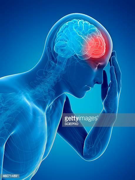 ilustraciones, imágenes clip art, dibujos animados e iconos de stock de headache, artwork - dolor de cabeza