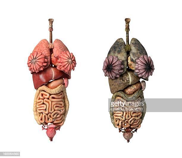 Healthy and diseased organs, artwork