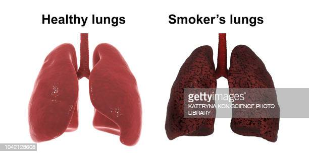 healthy and smoker's lungs, illustration - unhealthy living stock illustrations, clip art, cartoons, & icons