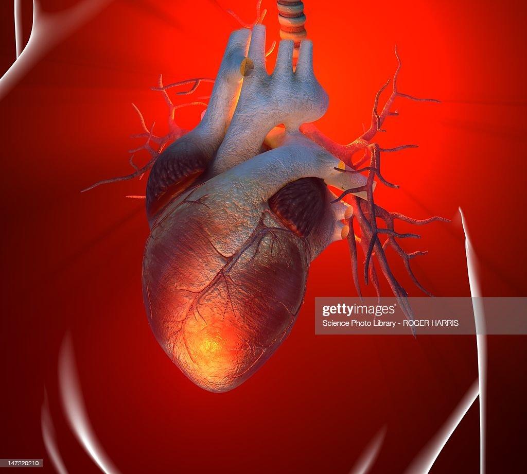 Heart attack, conceptual artwork : stock illustration