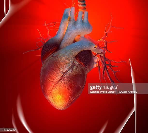 illustrations, cliparts, dessins animés et icônes de heart attack, conceptual artwork - coeur humain