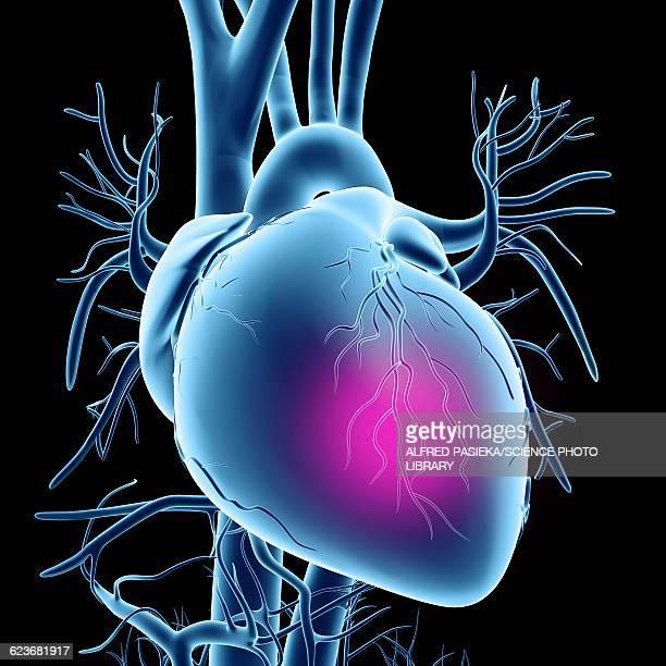 heart attack, conceptual artwork - heart disease stock illustrations