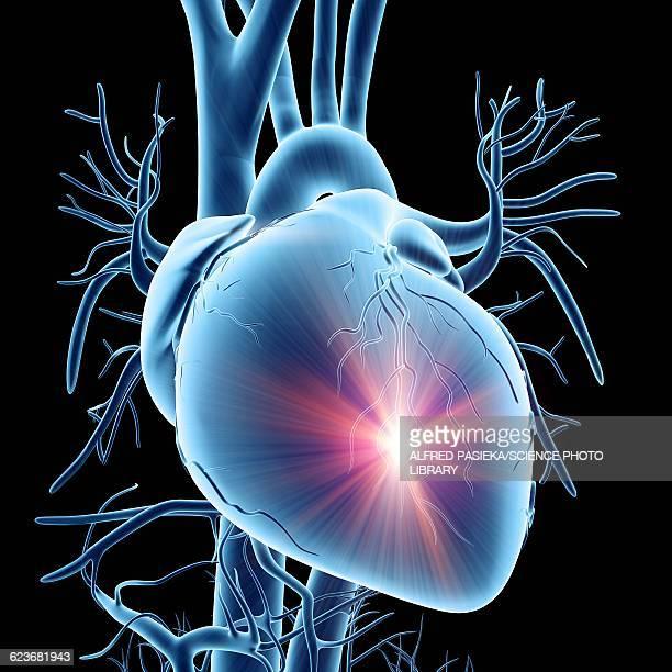 illustrazioni stock, clip art, cartoni animati e icone di tendenza di heart attack, conceptual artwork - cancrena