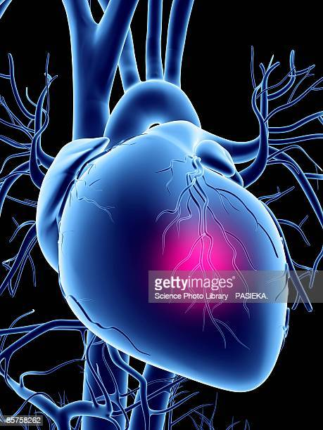 heart attack, conceptual computer artwork - coronary artery stock illustrations, clip art, cartoons, & icons