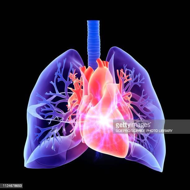 heart attack, conceptual illustration - cardiopulmonary system stock illustrations, clip art, cartoons, & icons