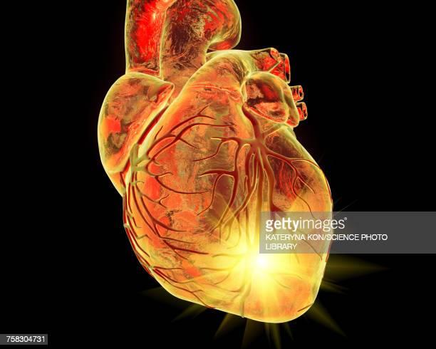 heart attack, conceptual illustration - cardiologist stock illustrations