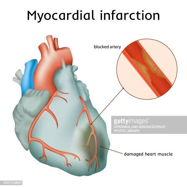 heart attack, illustration - myocardium stock illustrations, clip art, cartoons, & icons