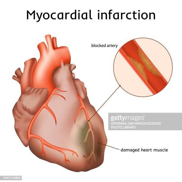 ilustraciones, imágenes clip art, dibujos animados e iconos de stock de heart attack, illustration - cardiólogo
