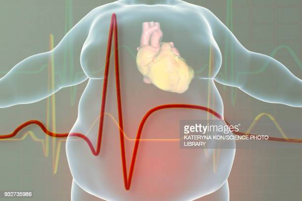 heart attack in obese man, illustration - heavy stock illustrations, clip art, cartoons, & icons