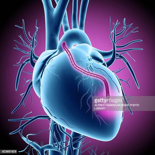 heart bypass graft, artwork - myocardium stock illustrations, clip art, cartoons, & icons