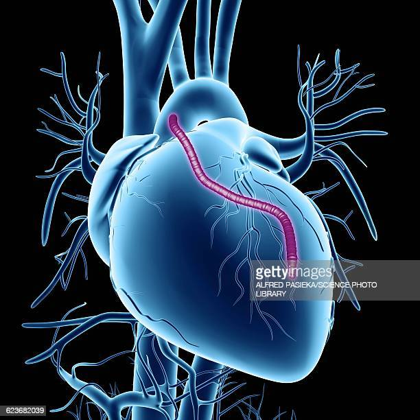 heart bypass graft, artwork - coronary artery stock illustrations, clip art, cartoons, & icons