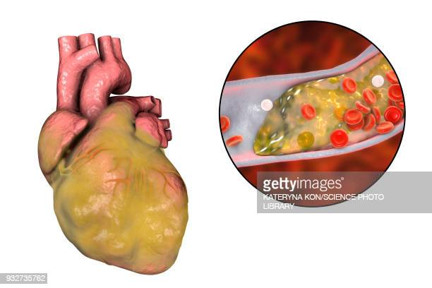 heart disease, illustration - human body part stock illustrations, clip art, cartoons, & icons
