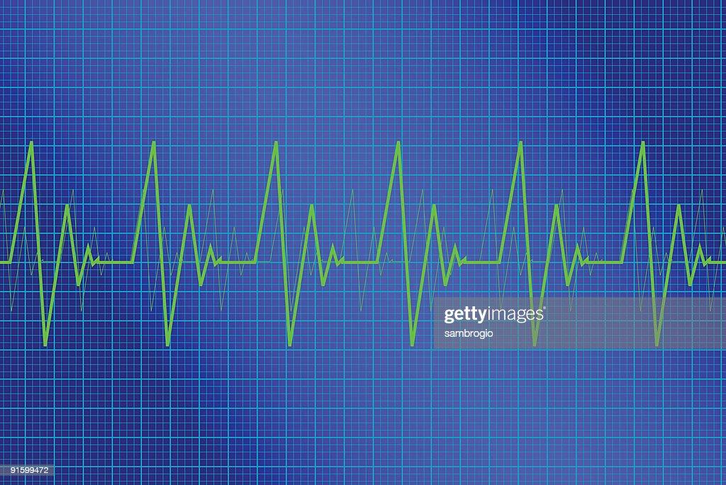 Heart Monitor : stock illustration