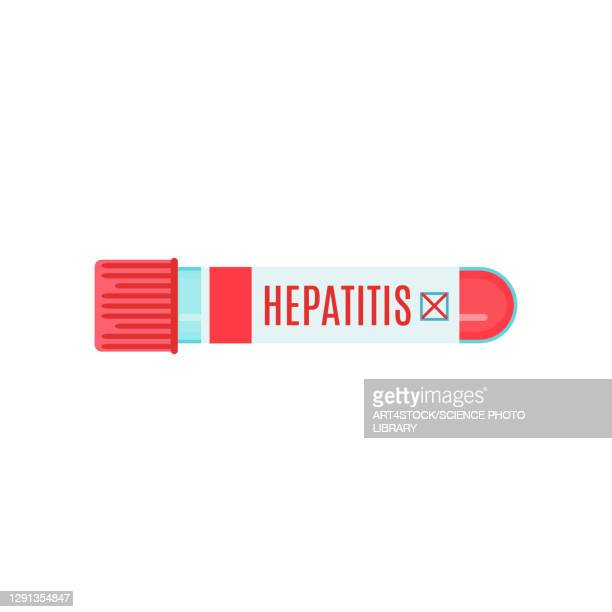 hepatitis, conceptual illustration - hepatitis stock illustrations