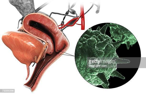 illustrazioni stock, clip art, cartoni animati e icone di tendenza di herpes virus - condiloma