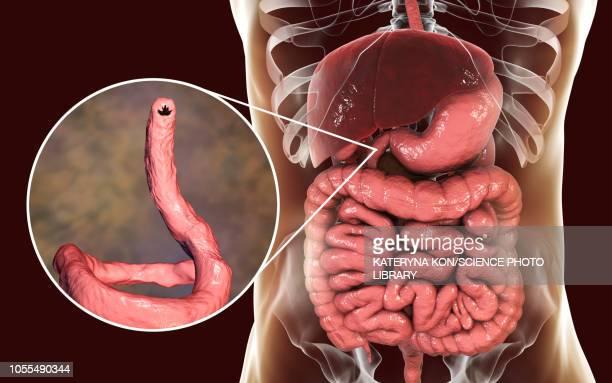 Hookworm, illustration