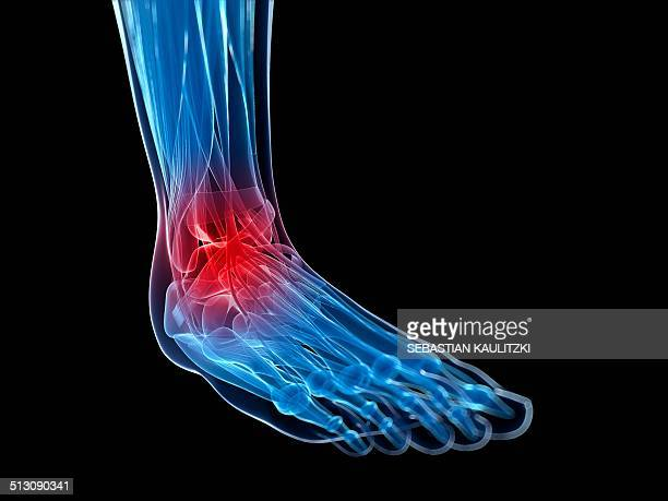 Human ankle pain, artwork