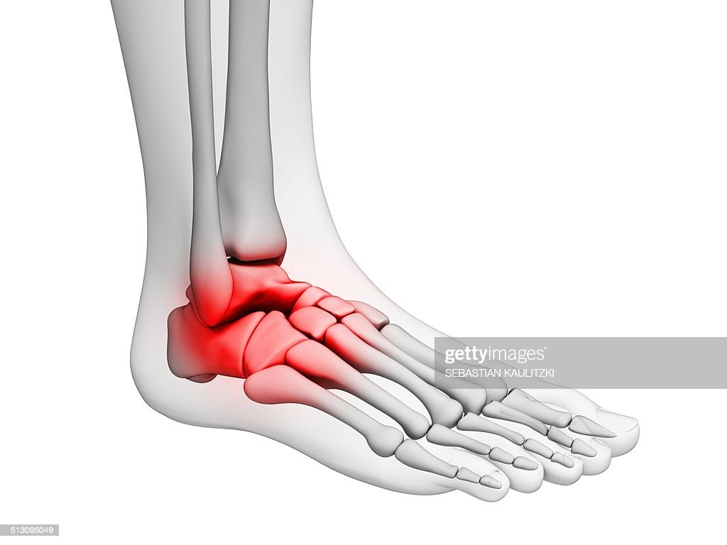 Human Ankle Pain Artwork Stock Illustration Getty Images