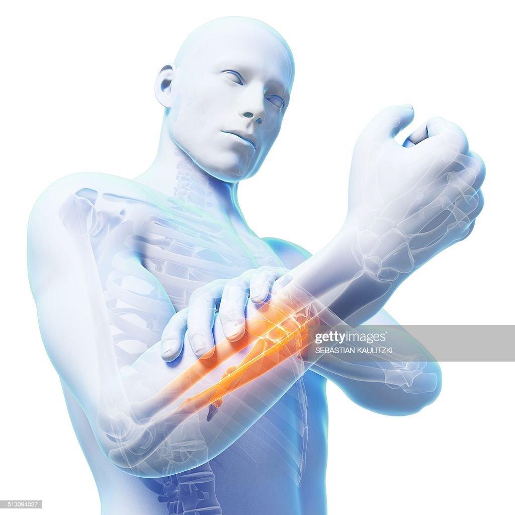 Human arm pain, artwork : Ilustración de stock