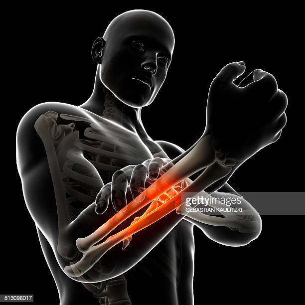 human arm pain, artwork - forearm stock illustrations, clip art, cartoons, & icons