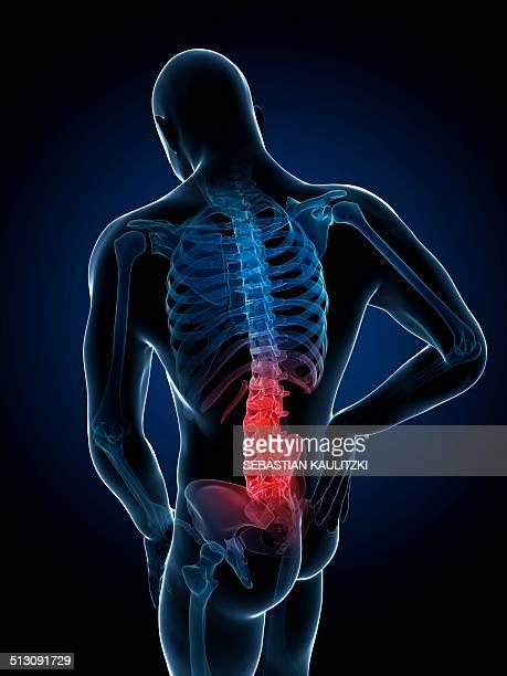 human back pain, artwork - human back stock illustrations, clip art, cartoons, & icons
