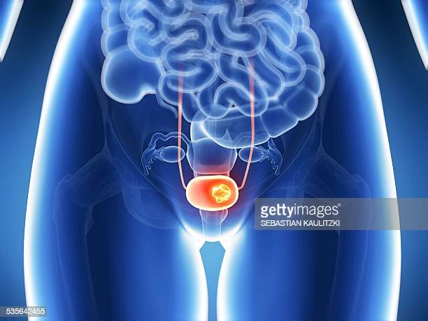 human bladder cancer, illustration - bladder stock illustrations, clip art, cartoons, & icons