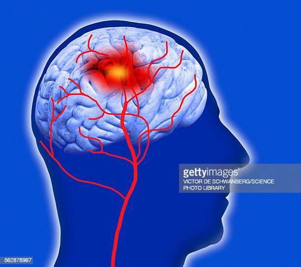 human brain showing stroke - unhealthy living stock illustrations