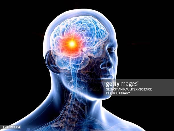 human brain tumour, illustration - brain tumour stock illustrations