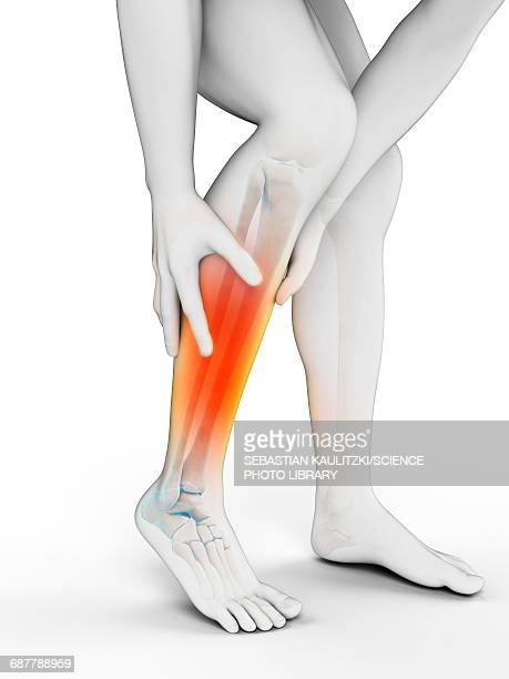 calf pain stock illustrations and cartoons
