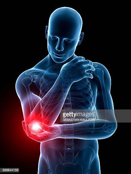 Human elbow pain, illustration