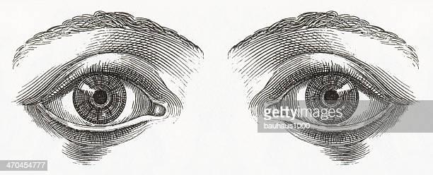 人間の目の彫りこみ文字 - 検眼医点のイラスト素材/クリップアート素材/マンガ素材/アイコン素材
