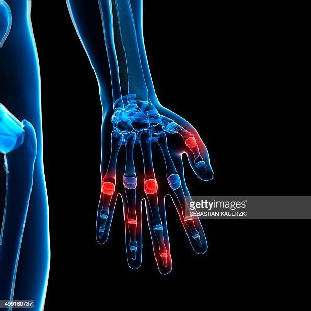 human finger joints, artwork - joint body part stock illustrations, clip art, cartoons, & icons