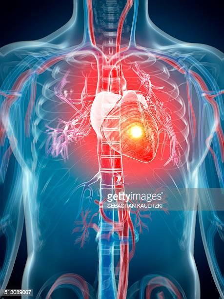 human heart attack, artwork - heart attack stock illustrations