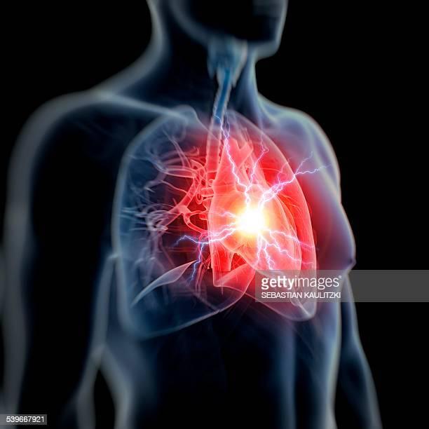 human heart attack, illustration - heart attack stock illustrations