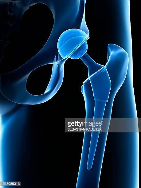 Human hip replacement, artwork