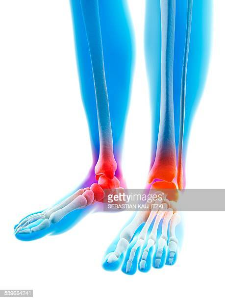 human inflamed ankle, illustration - swollen ankles stock illustrations