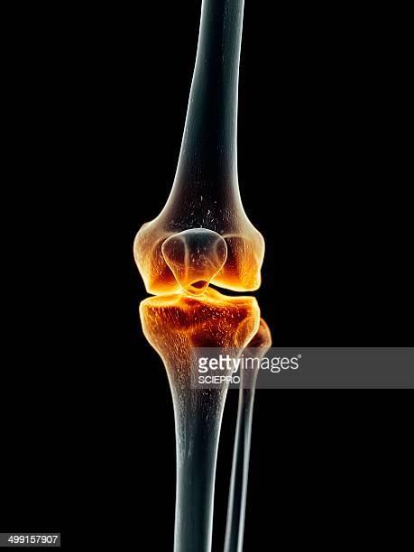 human knee, artwork - inflammation stock illustrations