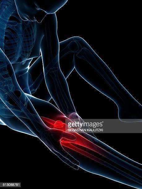 Human knee pain, artwork